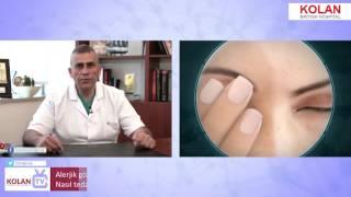 Dr. Savaş Baydar - Alerjik Göz Hastalığı Nedir ? Belirtileri Nelerdir ? Nasıl Tedavi Edilir ?
