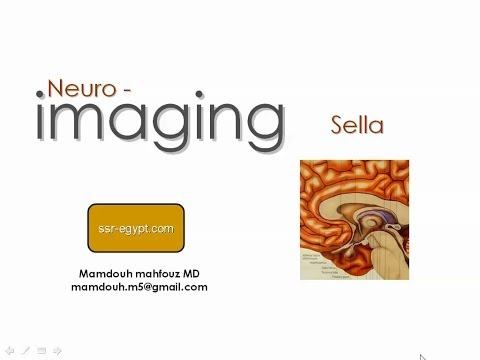 Imaging of the Sella - Dr Mamdouh Mahfouz