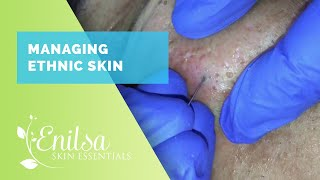 Managing Ethnic skin (Extractions part 2)