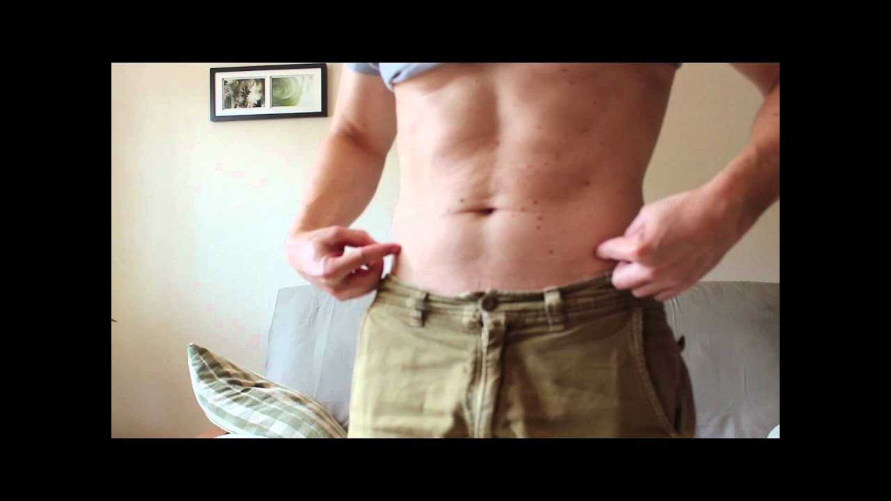 Coolsculpting Results Did The Fat Loss Procedure Work