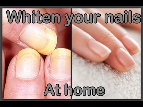 Blanquea tus unas en casa   Whiten your nails at home (easy)