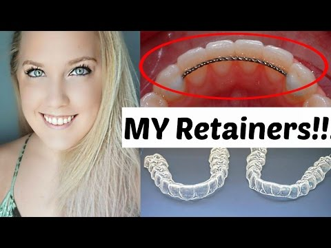 permanent bonded retainers after braces philosophy essay A dictionary file dict_files/eng_comdic this class can parse, analyze words and interprets sentences it takes an english sentence and breaks it into words to determine if it is a phrase or a clause.