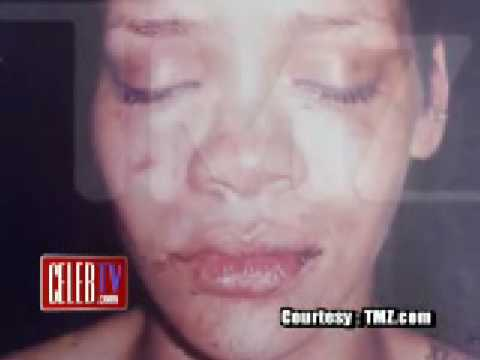 Rihanna pic after Chris Brown hit her