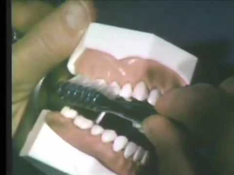 Oral Hygiene Methods - Toothbrushing and Flossing