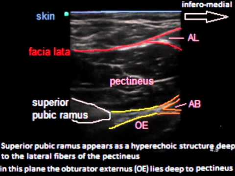 ultrasound guided epidural steroid injections