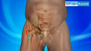 Hip Bursitis 3D Video: Watch How it is Caused, Know Its Treatment, PT, Symptoms