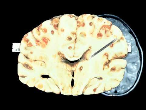 brain tapeworm - photo #18