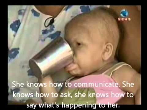 28 Years Old Woman In A Baby's Body (english Subtitles) video