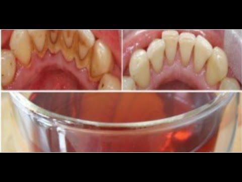 Чем почистить камень на зубах в домашних условиях 524