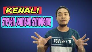 Mengenal Steven Johnson Syndrome Penyebab Dan Gejalanya