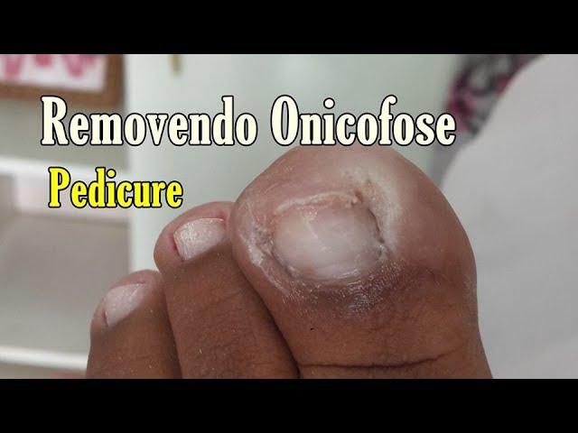 Pedicure Avançado-  Remoção de Onicofose