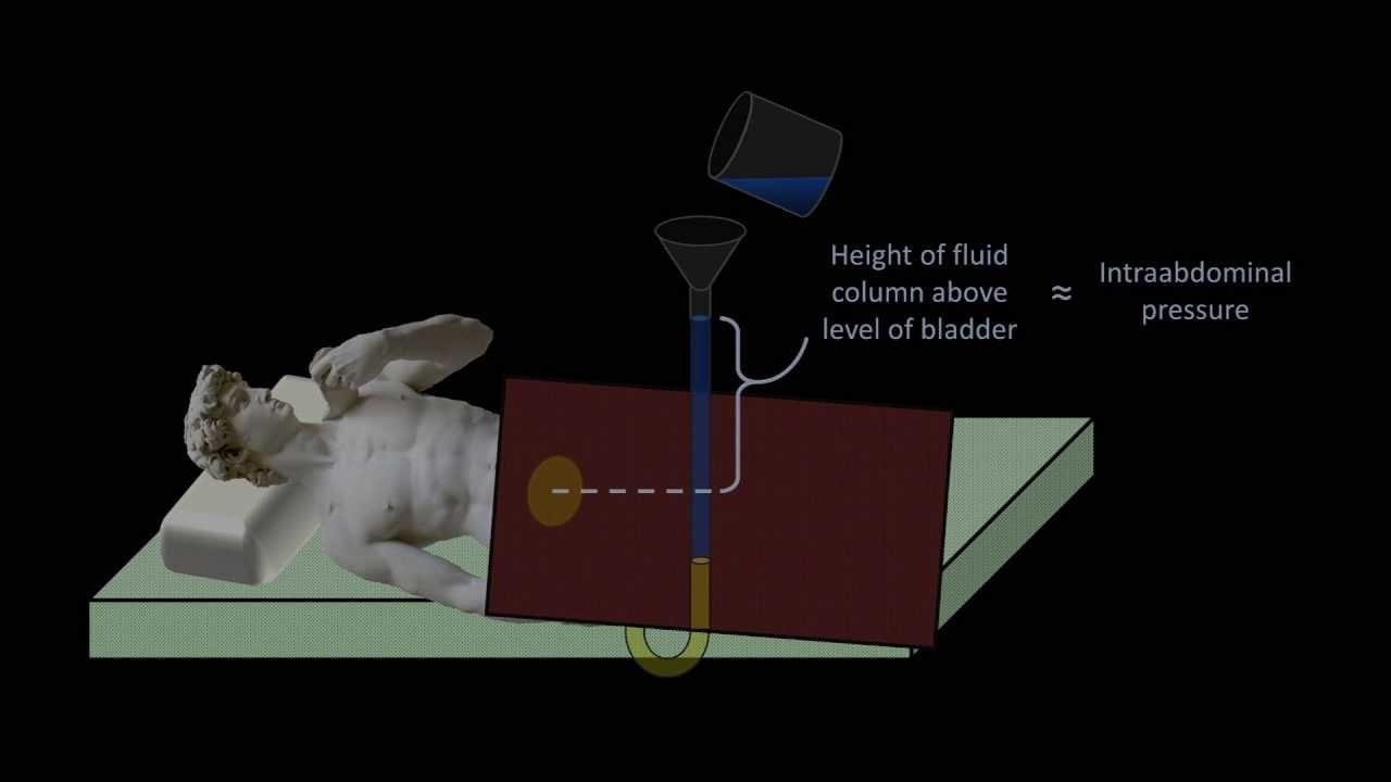 hydrostatic pressure medical applications fluid mechanics lesson  youtube