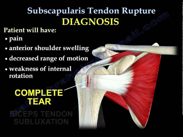 Subscapularis Tendon Rupture - Everything You Need To Know - Dr. Nabil Ebraheim