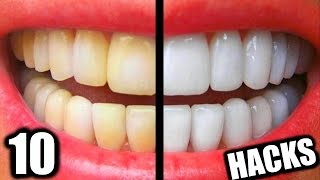 10 Simple Life Hacks For Teeth Whitening Everyone Should Know! DIY Teeth Whitening Hacks!