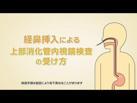 「経鼻挿入による上部消化管内視鏡検査の受け方」(オリンパス「おなかの健康ドットコム」)