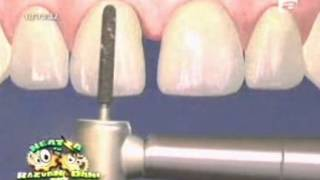 Fatetele dentare - Dr. Chemal Taner si Dragomir Simona - in direct la Razvan si Dani