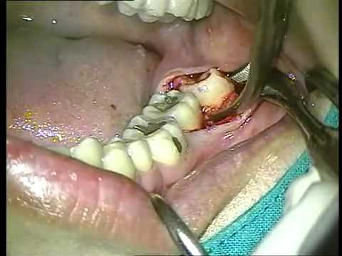 how to help wisdom teeth pain before removal
