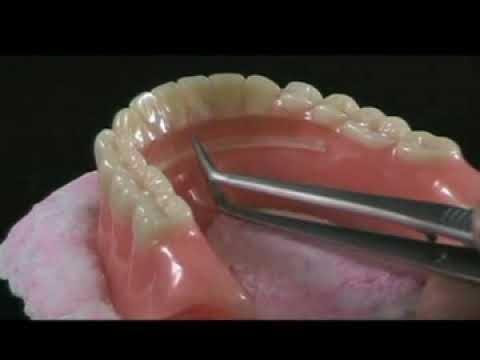 Denture Repair: Homemade Denture Repair