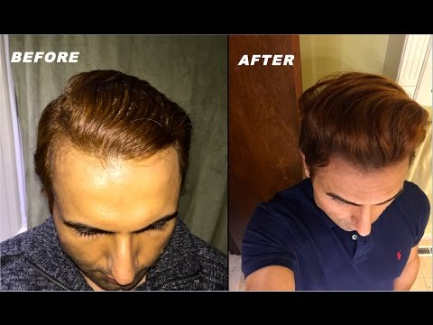 Tutorial for Modern Hairstyle with Tips/Tricks for Receding Hairline!