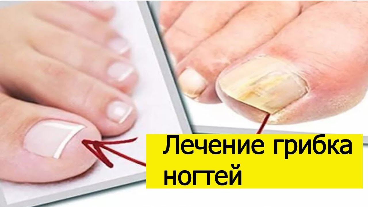 Средство от ногтевого грибка в домашних условиях 859
