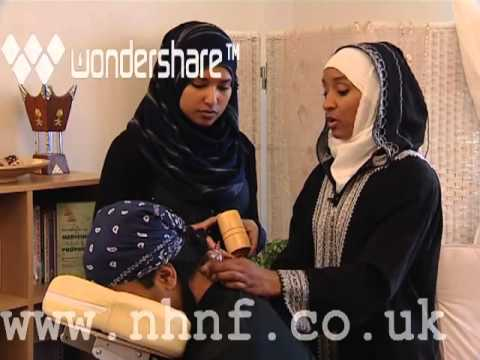 1st EVER Hijama/cupping interview on Islam Channel