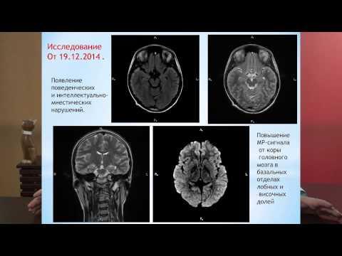 Тяжелое поражение головного мозга после приема курительной смеси (спайса). Союз педиатров России.