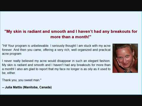 Acne No More By Mike Walden - Real Customer Testimonials Video