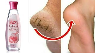 In Just 5 minutes Remove cracked Heels || Health ANd Beauty Expert || Keerthy