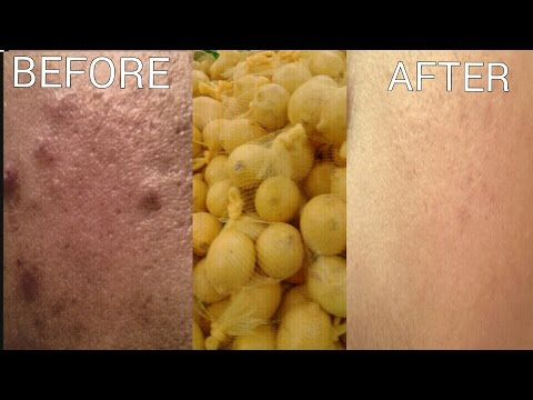 Natural remedy How to use LEMON to reduce scarring, dark spots,acne,blackheads