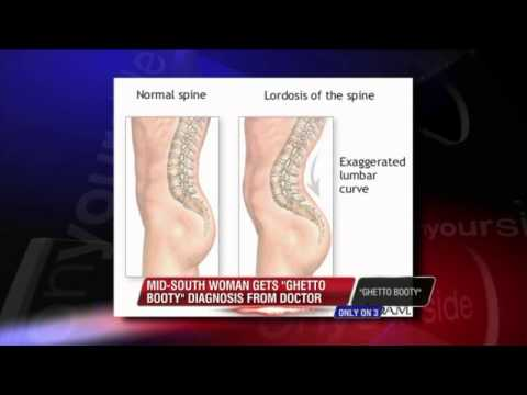 """Mid-South Doctor Gives """"Ghetto Booty"""" Diagnosis"""