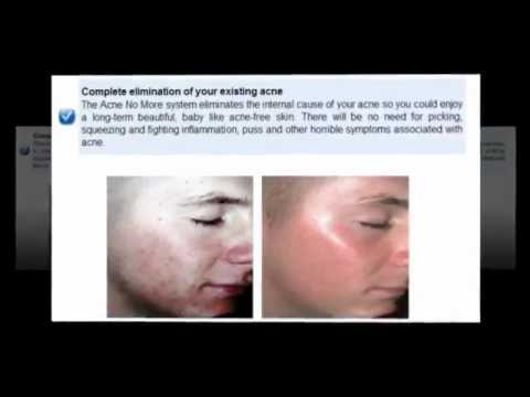Best Acne Treatment Products Review  Is Best Acne Treatment Products All It's Cracked Up To Be