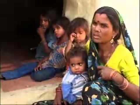 Malnutrition: Its Causes in Children of India`s Poor | Raksha Changappa, Nutritionist