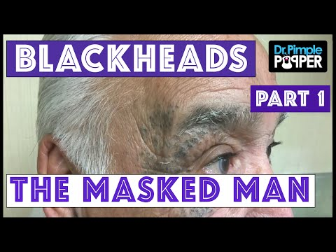 Return of The Masked Man: Blackhead Extractions! | Session 3, Part 1