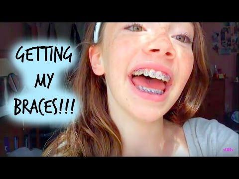 Vlog ~ Getting My Braces On