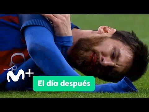 El Día Después (24/04/2017): El Clásico de Messi thumbnail