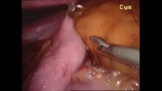The First Use of the V-Loc Suture for the Laparoscopic Gastric Plication (Mide Katlama Ameliyatı)