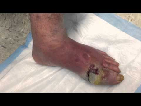 Jojo - Good Foot