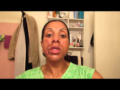 Glycolic Acid and Lactic Acid Chemical Peel Day 2 Part 3