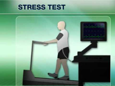 Heart Disease Tests - Exercise Stress Test