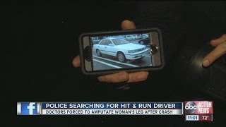 Woman loses leg in hit-and-run accident, police search for driver