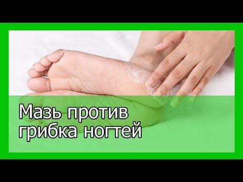 Как самому сделать мазь от грибка ногтей