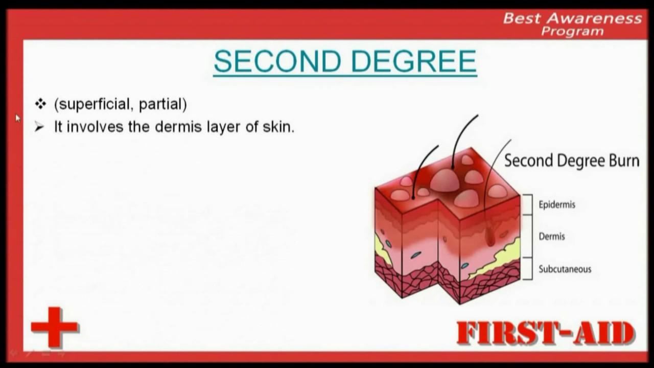 Second degree sunburn pictures
