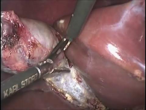 Vesícula Biliar Cirurgia