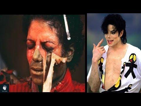 السبب الحقيقي وراء تغير لون بشرة مايكل جاكسون وعدم تعرضه للشمس ..!!