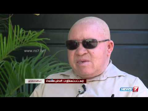 Safety of Albino patients is in question in Tanzania | World | News7 Tamil