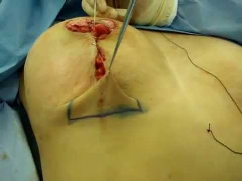 Mamoplastia Video 2 Music Videos