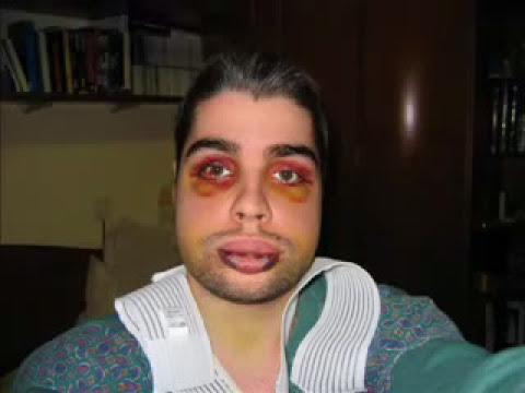 Mi operacion de mandibula