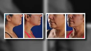 Phoenix Liposuction Results: Female Chin