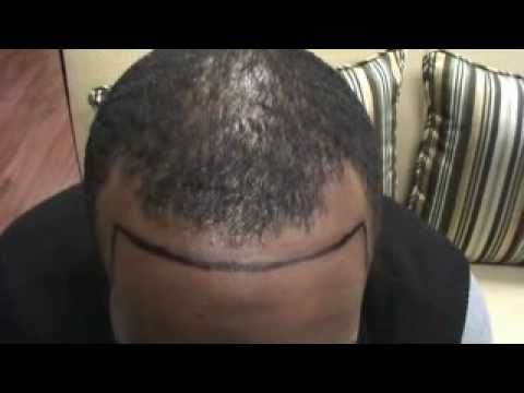 Hair loss tattoo testimonial marcus youtube for Hairline tattoo cost