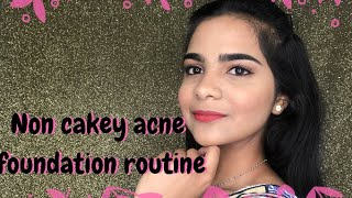 Non cakey acne foundation routine | Chermel's World